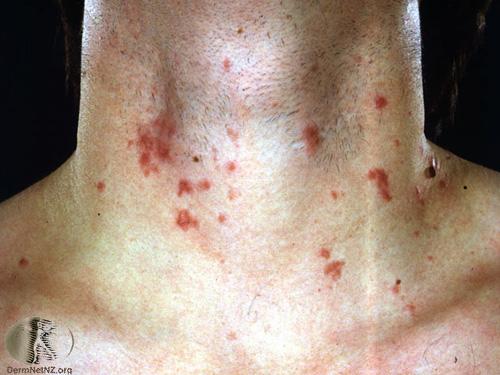 phytophotodermatitis